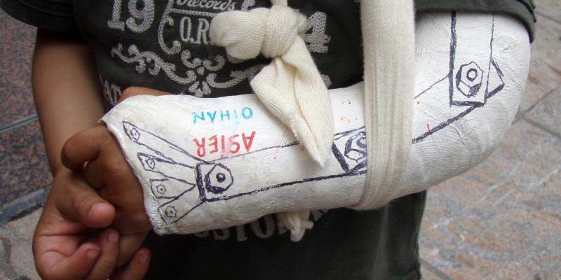 Broken Arm by Daniel Lobo daquellamanera 2709815541 EDIT
